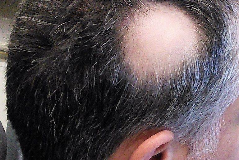 Alopecia_areata_1
