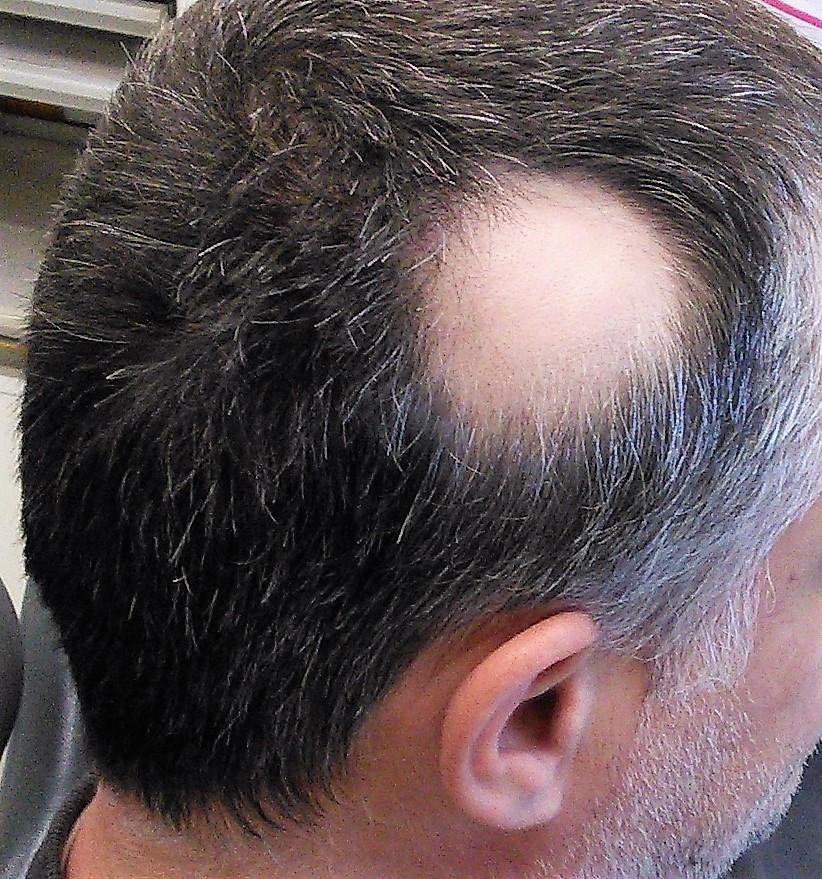 La alopecia areata: causas y tratamiento